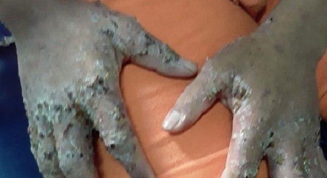 Doença que 'come pele' afetou detentos da Penitenciária Agrícola de Monte Cristo Divulgação/OAB-RR