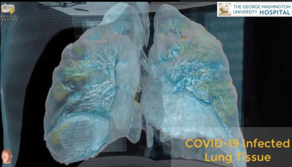 Imagem – Pulmão de paciente com COVID-19
